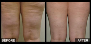 Velashape Before and After Legs